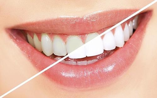 odontologia, estetica dental, implantes, ortodoncia,  oferta