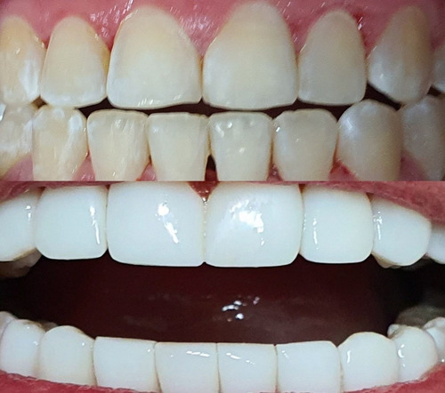 odontología estética diseño de sonrisa en resina