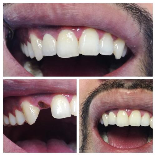odontologia general protesis e implantes dentales