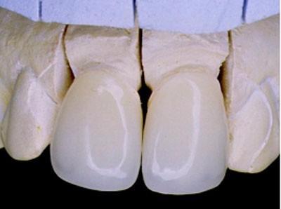 odontologia resina blanqueamiento profesional colocar diente