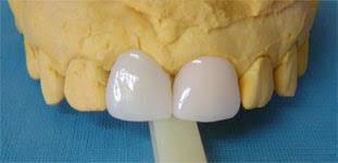 odontólogo   dolor resina extraer bruxismo consulta
