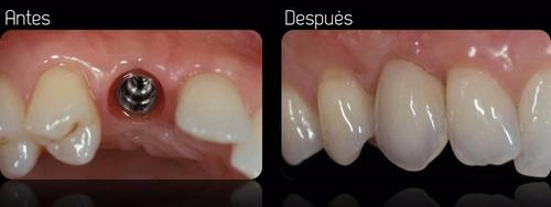 odontólogo (uba) implantes dentales. consultas $ 500.