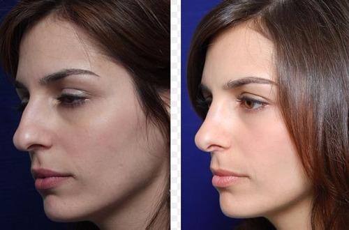 oferta rulav respingador y corrector de nariz sin cirugia