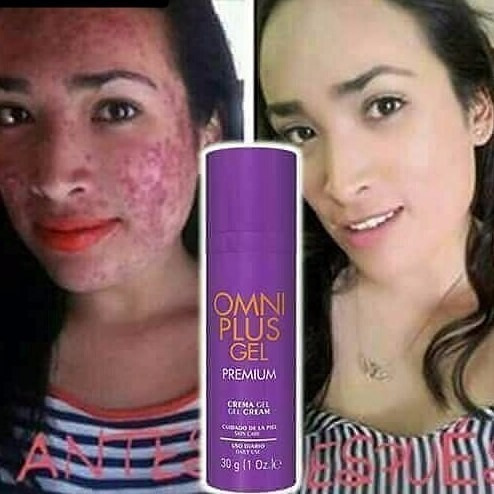 omniplus gel premiun (acné cicatrices)
