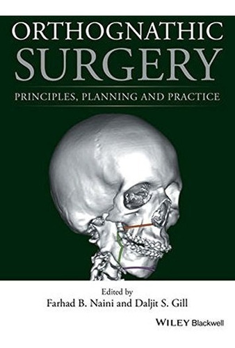 orthognathic surgery: principles, planning and practice 1st