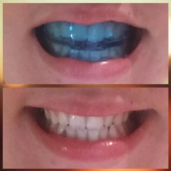 Ortodoncia Alineación Corregir Dientes Chuecos Brackets S 4200