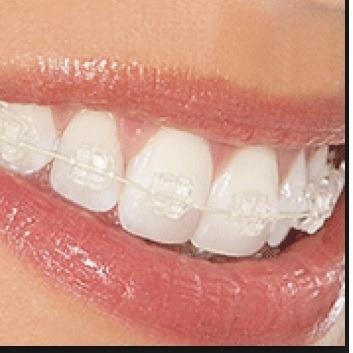 ortodoncia - bracket ceramicas