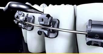 ortodoncia  brackets- a pura consulta