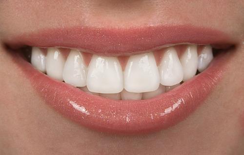 ortodoncia - brackets - a pura cuota!