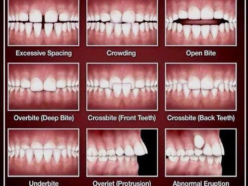 ortodoncia  brackets consulta