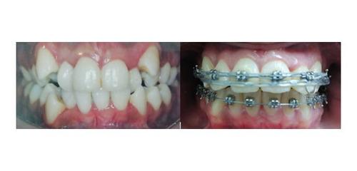 ortodoncia brackets estéticos y metálicos mini
