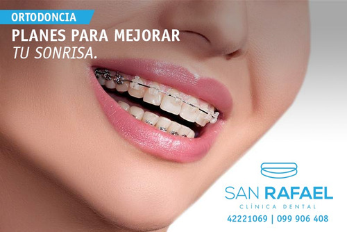 ortodoncia - brackets - maldonado 40% off