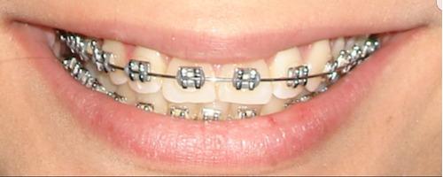 ortodoncia brackets metálicos y estéticos  paga en cuotas!