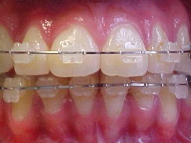 ortodoncia  brackets metalicos zafiro o invisible belgrano