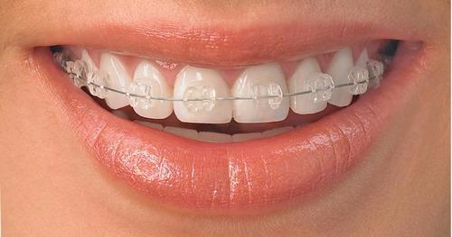 ortodoncia con brackets metalicos ceramicos zafiro belgrano