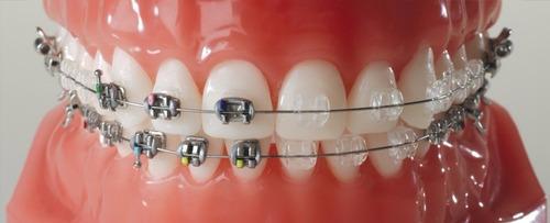 ortodoncia con brackets metálicos y estéticos 12 cuotas