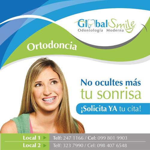 ortodoncia desde 98 dólares ( brackets)
