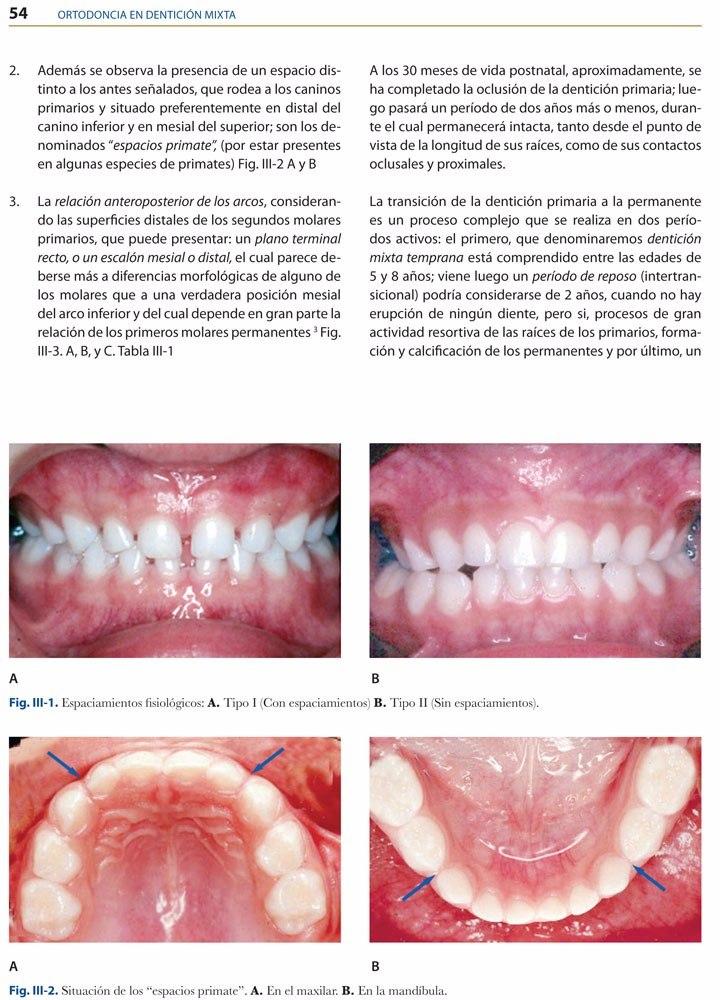 Ortodoncia En Dentición Mixta / Saturno / Amolca - $ 576.000 en ...