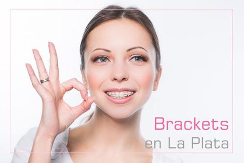 ortodoncia en la plata brackets