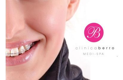 ortodoncia estetica, ajustes de brackets mont/punta del este