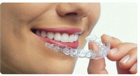ortodoncia invisible sin aparatos!
