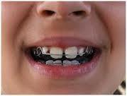 ortodoncia, prótesis flexibles, blanqueamiento, resinas, etc