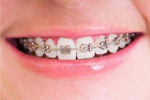 ortodoncia,implantes dentista