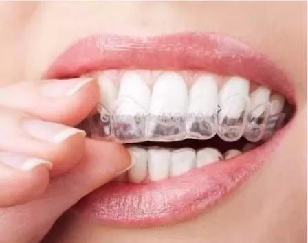 Par De Moldeira Termomoldavel Clareamento Dental R 12 80 Em