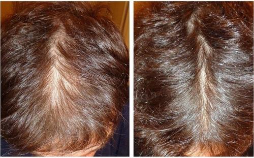 para cabello tratamiento