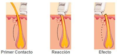 pearl sistema depilacion exfoliacion con calor para piernas
