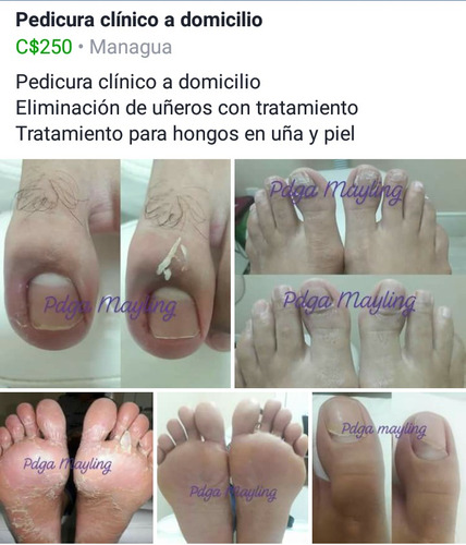 pedicura clinico