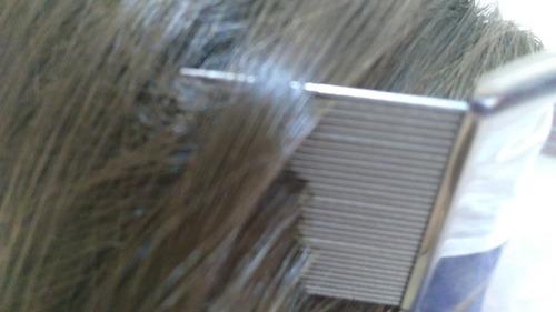 peine eliminador de piojos y liendres liendrera metalica