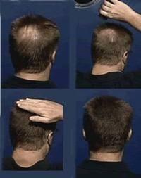El suero contra la caída de los cabello indeleble comprar