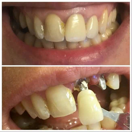 perno + corona dental de porcelana