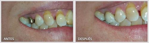 perno y corona de porcelana. protesis dentales. belgrano.
