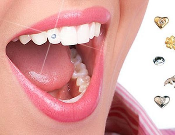 Piercing Dental Cristais Lapidados 20 Unidades Technew