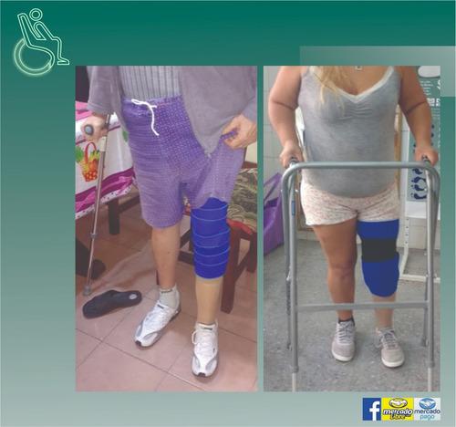 pierna ortopédica fabricación a medida