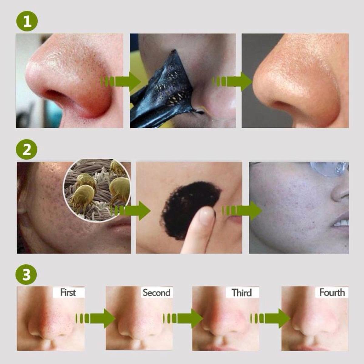 Los granos sobre la persona después del masaje y como curar