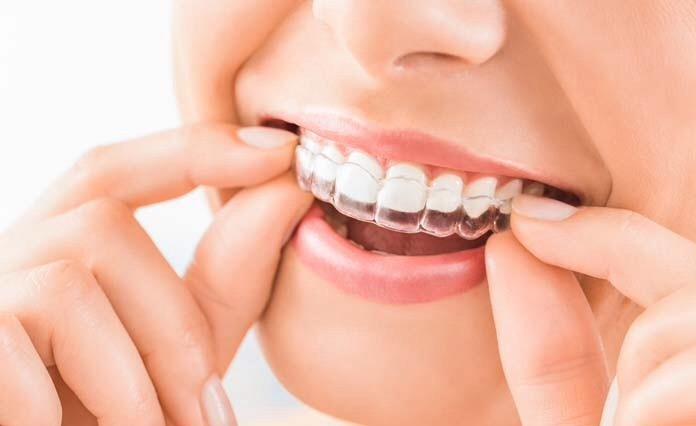 Placas De Clareamento Dental Personalizadas R 95 00 Em Mercado