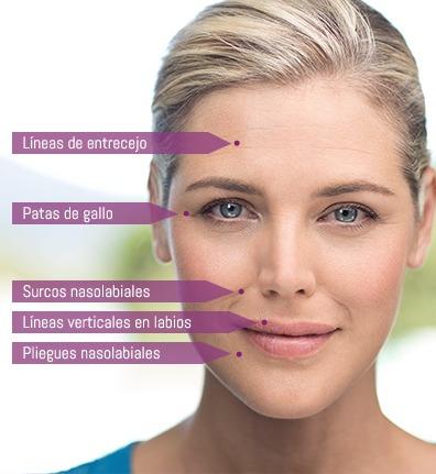 plasma-acné-manchas-envejecimiento-estètica integral