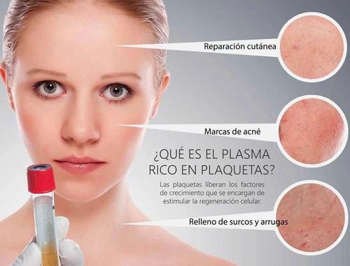 plasma rico en plaquetas  capilar prp recoleta saenz peña