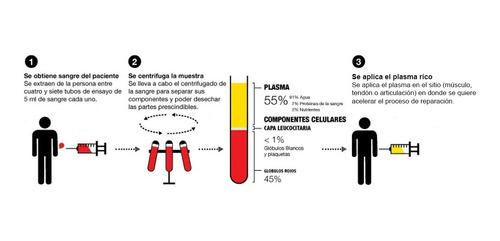 plasma rico en plaquetas tratamiento de artrosis en capital