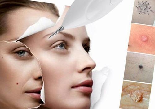 plasma rico plaquetas, limpieza facial, dermapen, peeling