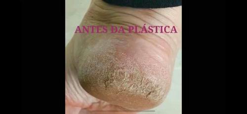plástica nos pés /curso com certificado