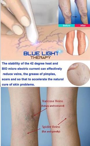 pluma foton azul anti acne y cicatrizante