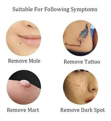 pluma laser removedor verrugas lunar mancha mezquino tatuaje