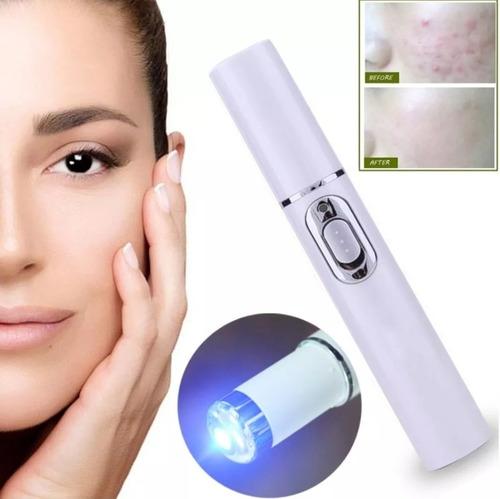 pluma luz foton azul mata cicatriza bacteria acné espinillas comedones removedor imperfecciones belleza piel tersa suave