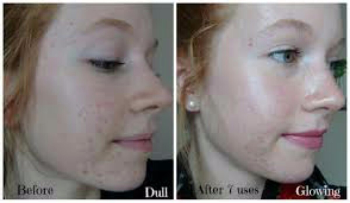 Pmd Microdermoabrasion Acne Arrugas Cicatrices Estrias