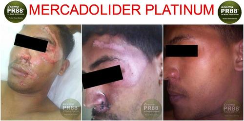 pr88® fórmula original / cicatrices / quemaduras / escaras
