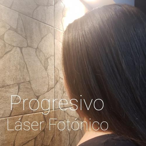 progresivo láser fotónico